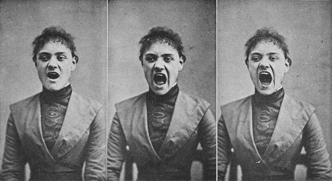 londe-albert-1892-hysterical-woman
